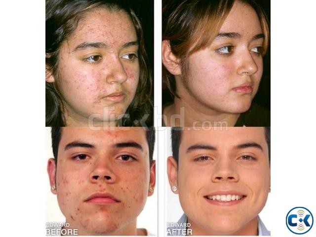 Proactiv Solution with Refining Mask 3-Step acne clear kit | ClickBD large image 2