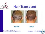 KAS Medical Center Delhi for All Your Hair Transplant Needs