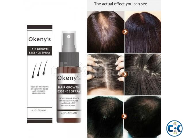 OKENYS HAIR GROWTH ESSENCE SPRAY | ClickBD large image 0