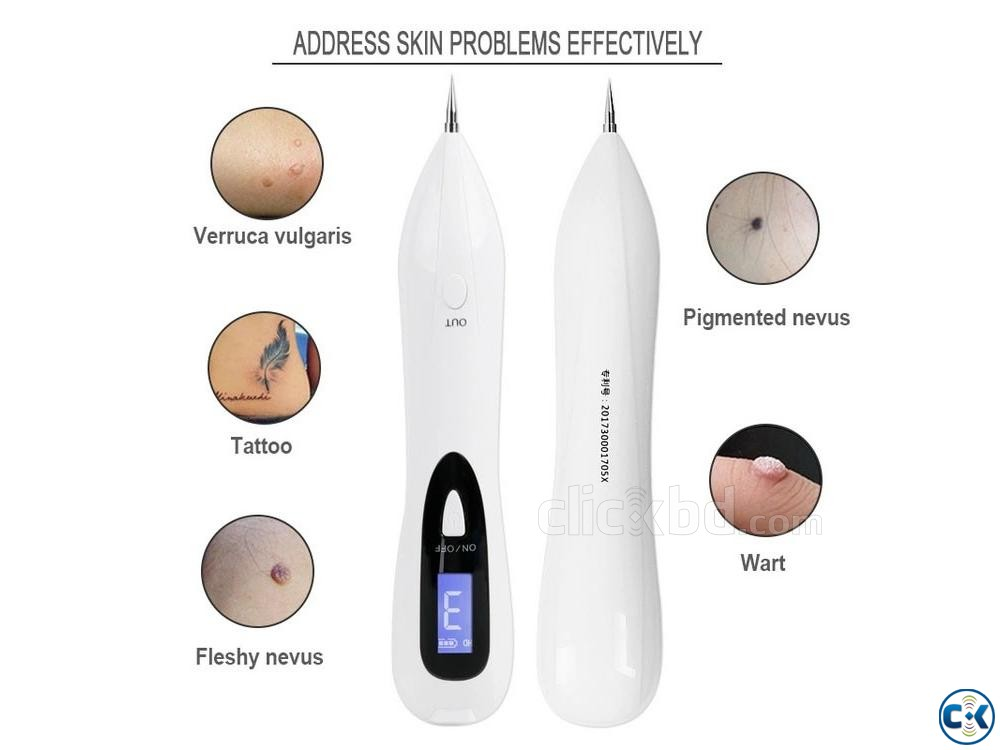 Plasma Pen with LCD Screen Tattoo Remove Mole Remover pen | ClickBD large image 0
