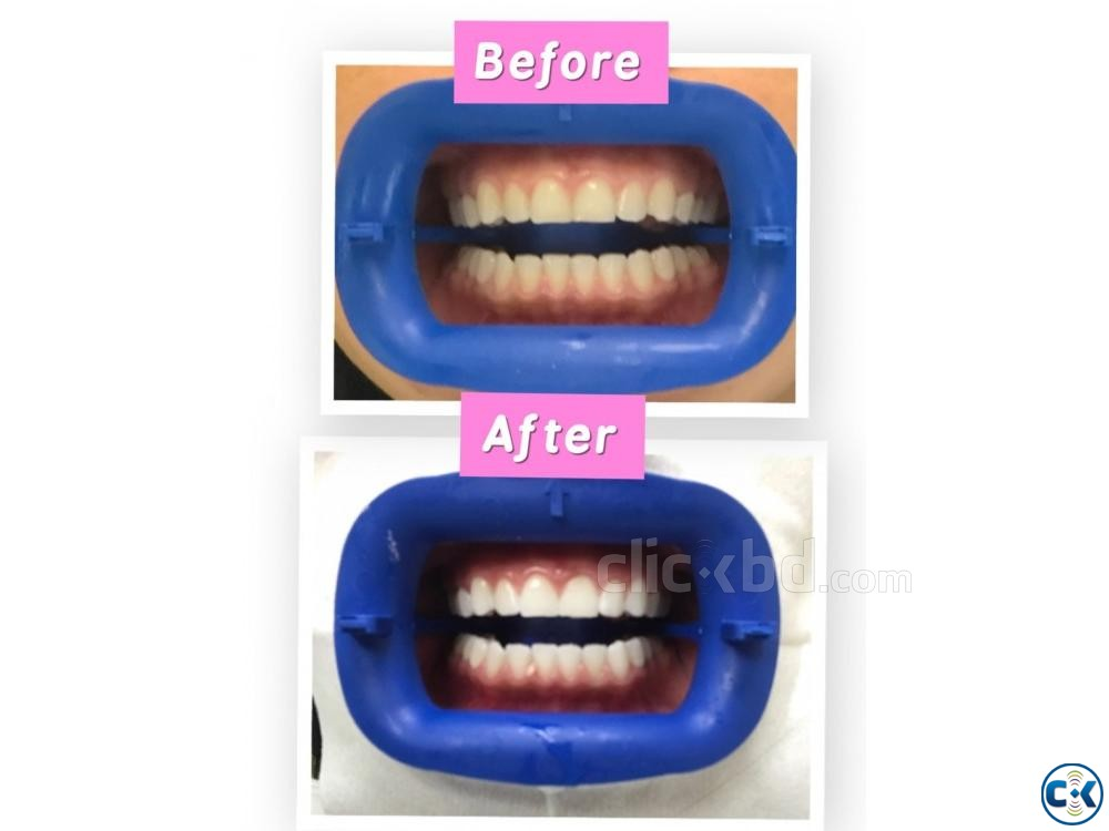Teeth Whitener | ClickBD large image 1