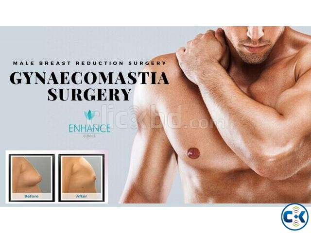 Opt For The Best Male Breast Reduction Surgery In Kolkata | ClickBD large image 2