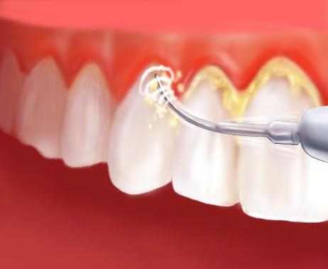 """Разбираемся в понятии  """"профессиональная чистка зубов """" и, самое главное, в ее необходимости 13.05.2013 11:34."""